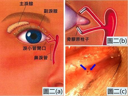 那么如果被确诊为干眼症,应该如何治疗呢?